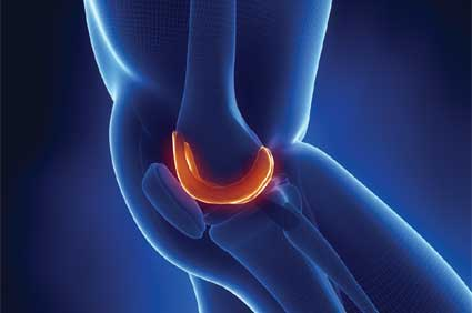 Medical Tourism in the Turks and Caicos includes knee arthroscopy.